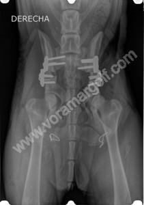 RADIOGRAFIA. Resolución quirúrgica del caso anterior. Tripe osteotomía de ambas caderas.