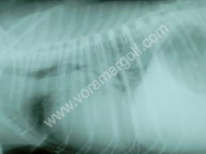 Cardiomegalia y edema pulmonar en un perro con filariosis cardiaca.