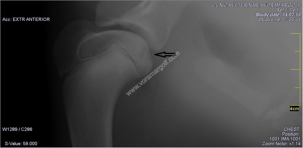 Osteocondritis disecante de hombro en un cachorro.